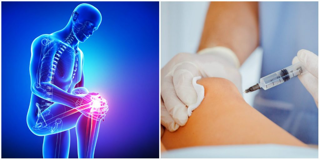 stem cell therapy or knee replacement surgery for knee pain Ohio Therapy Centers Cleveland Akron Canton Elyria
