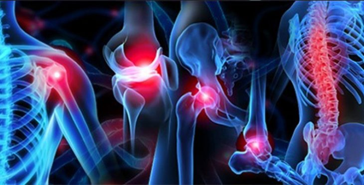 Back and Joint Pain