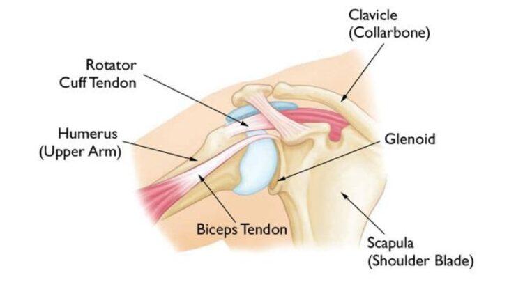 diagram of a biceps tendor shoulder tear