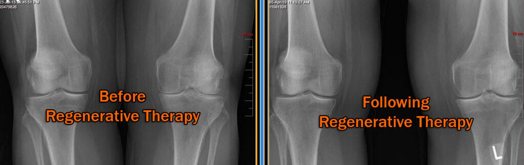 bilateral-regen xray showing before and after